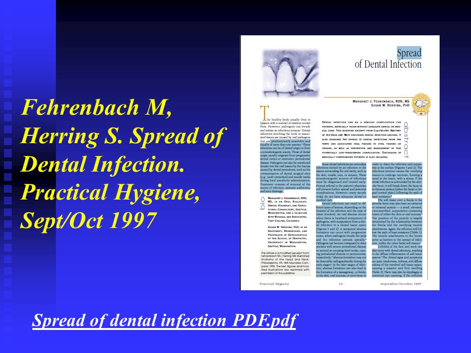 Fehrenbach M, Herring S. Spread of Dental Infection