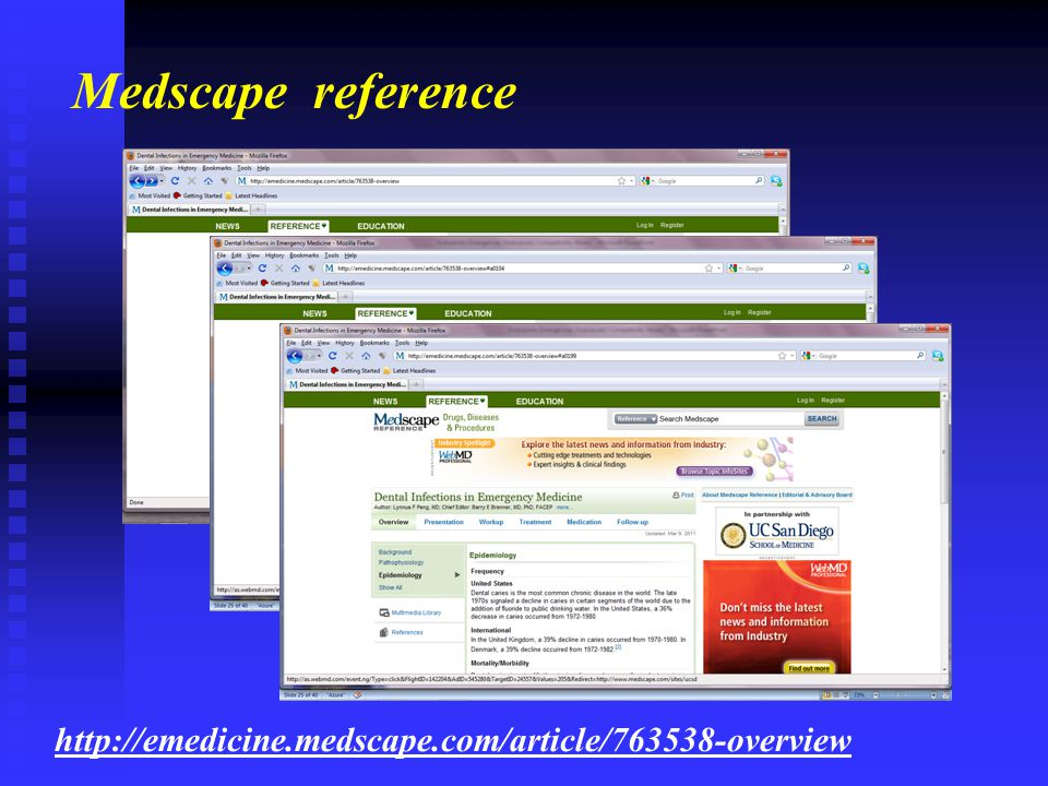 Medscape reference http://emedicine.medscape.com/article/763538-overview