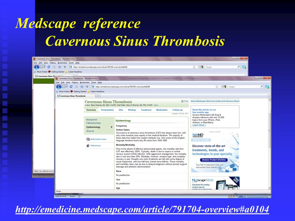 Cavernous Sinus Thrombosis