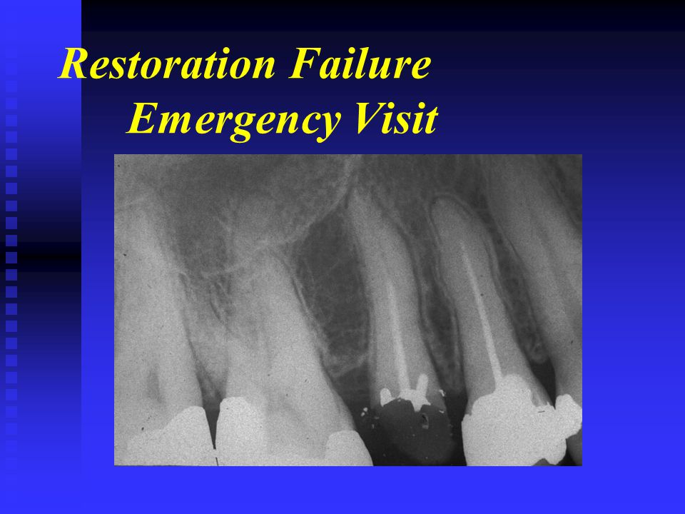 Restoration Failure Emergency Visit