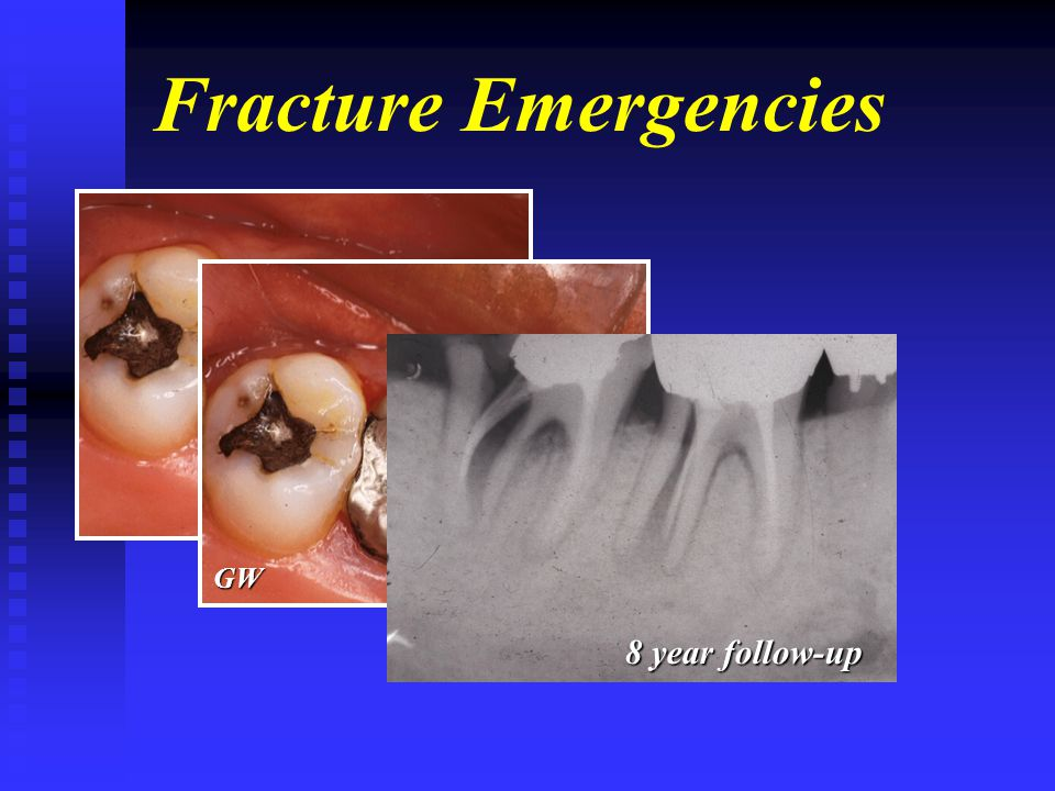 Fracture Emergencies GW 8 year follow-up