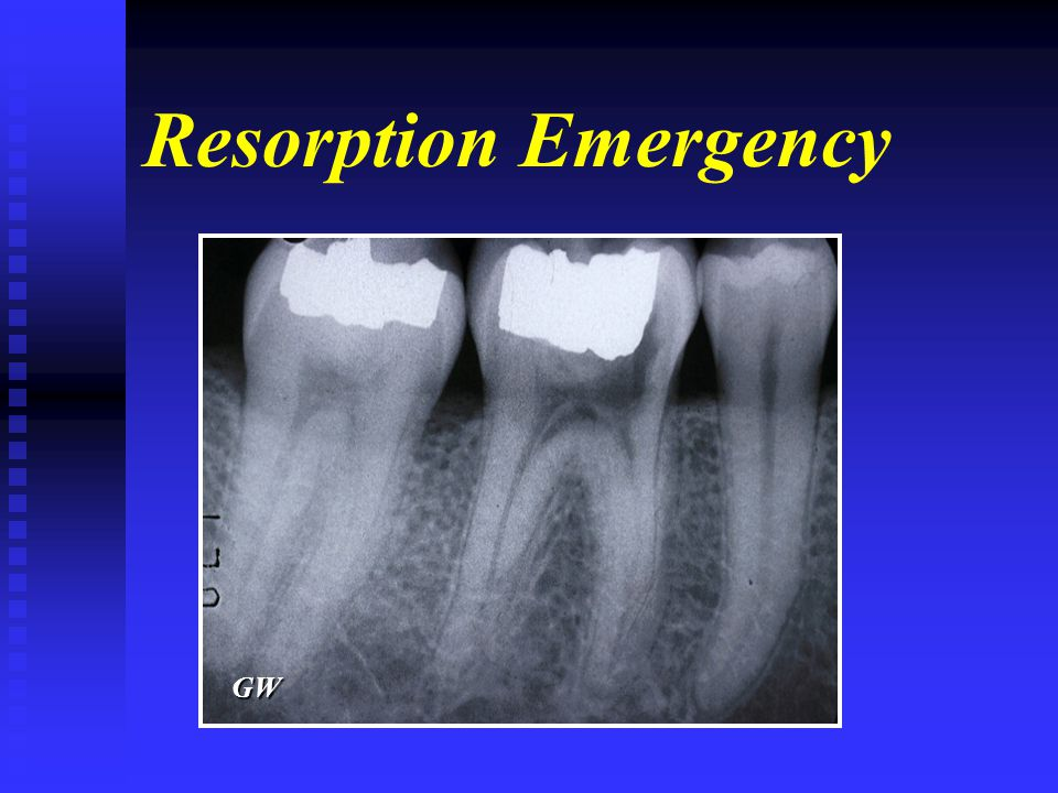 Resorption Emergency GW