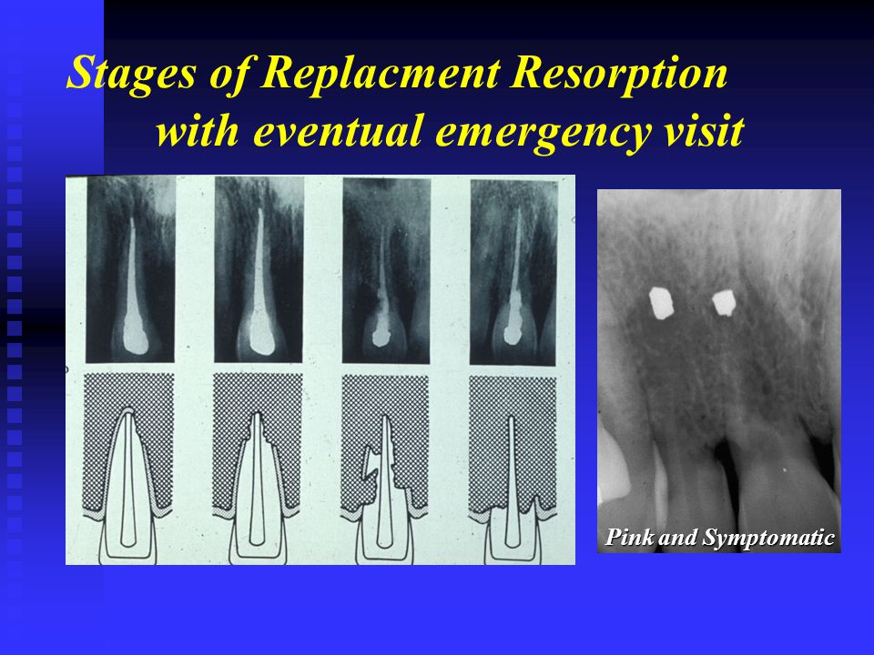 Stages of Replacment Resorption with eventual emergency visit