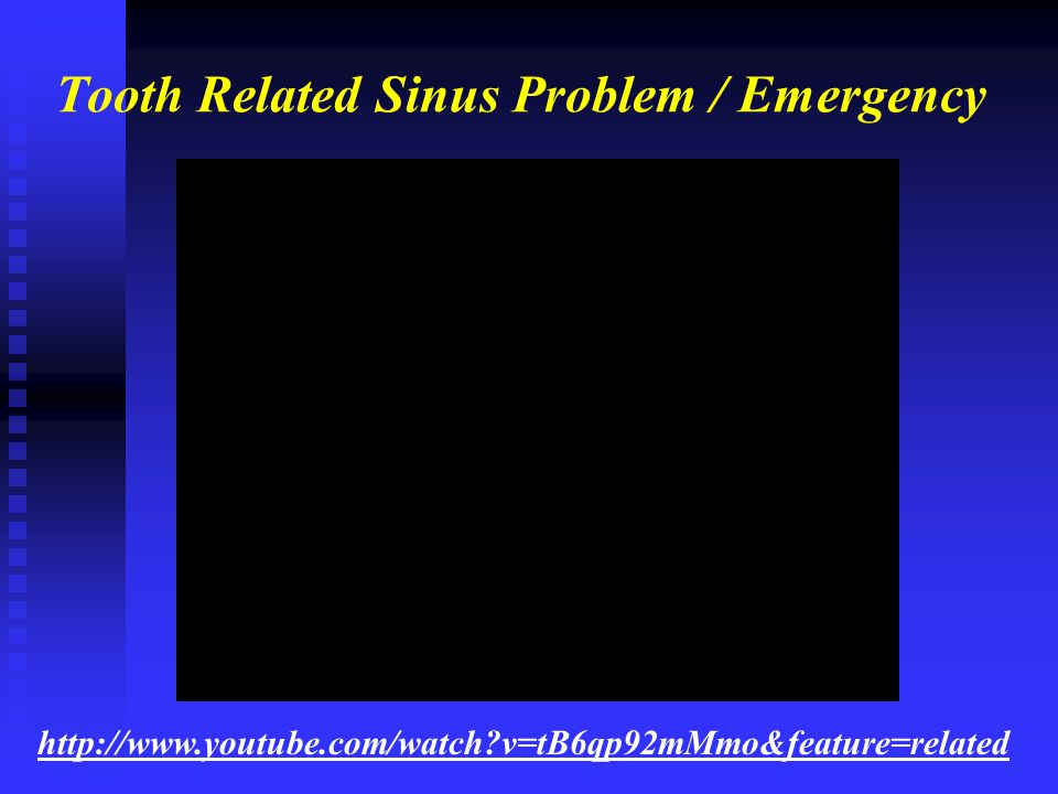 Tooth Related Sinus Problem / Emergency