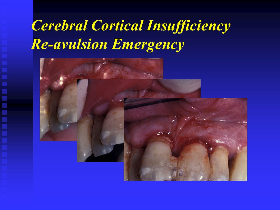 Cerebral Cortical Insufficiency Re-avulsion Emergency
