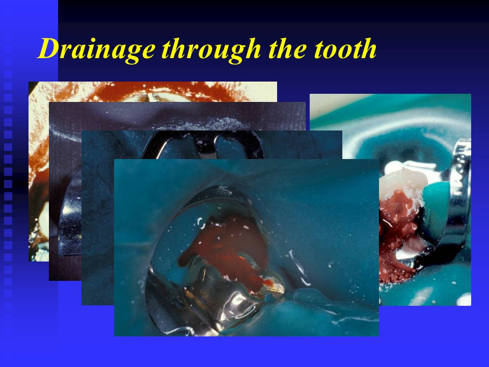 Drainage through the tooth