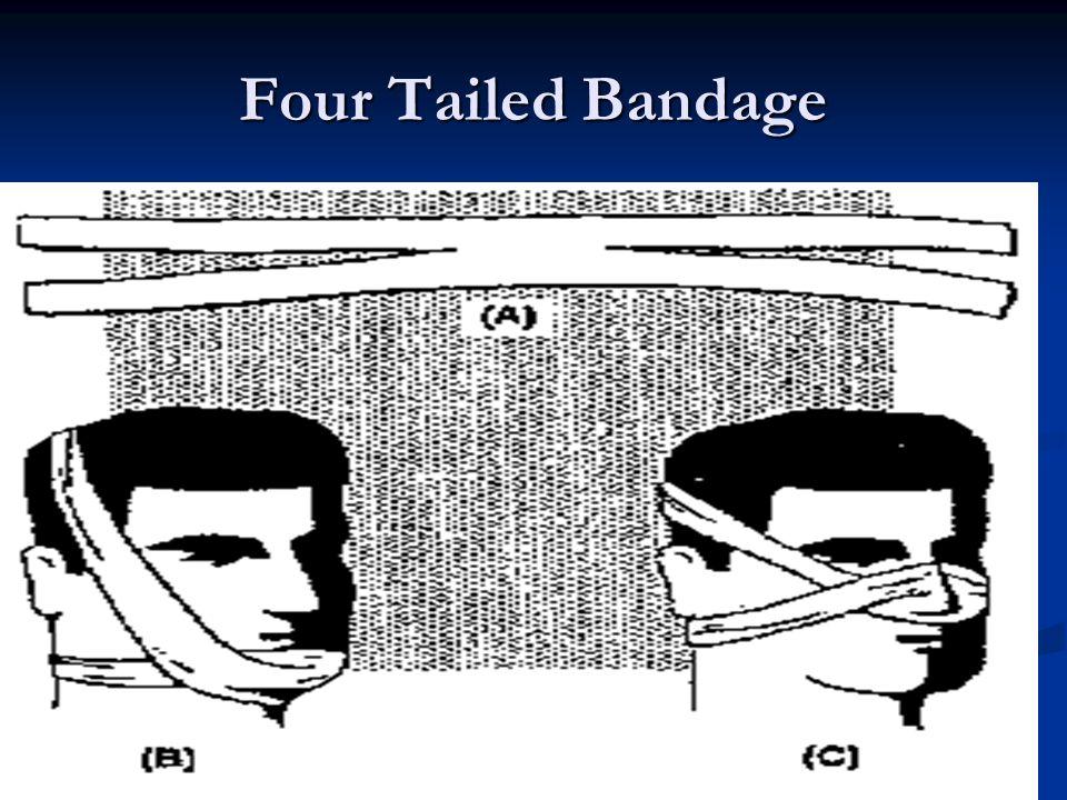 Four Tailed Bandage