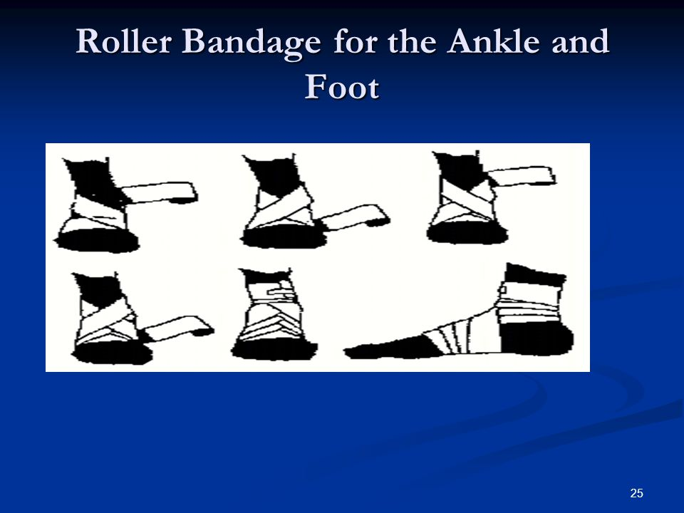 Roller Bandage for the Ankle and Foot