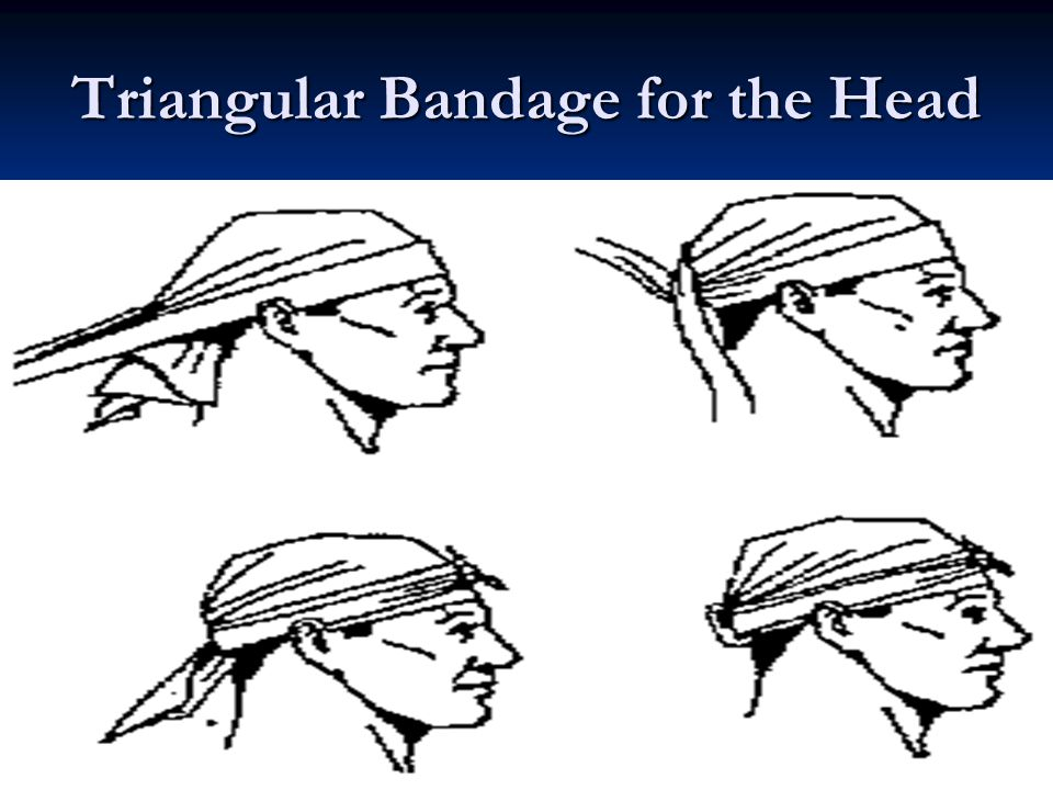 Triangular Bandage for the Head