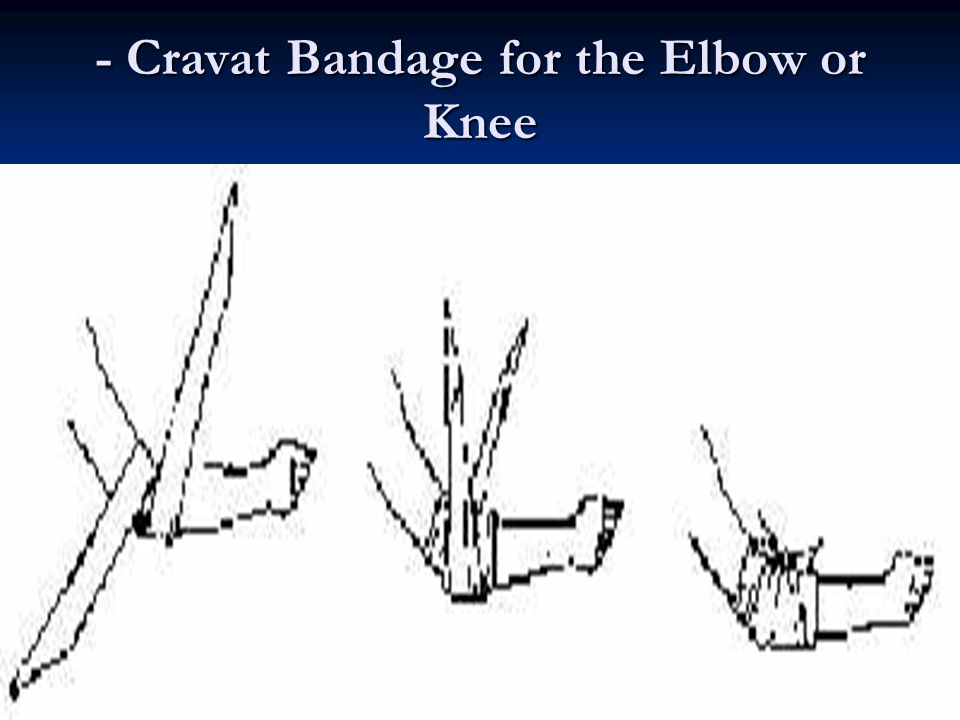 - Cravat Bandage for the Elbow or Knee