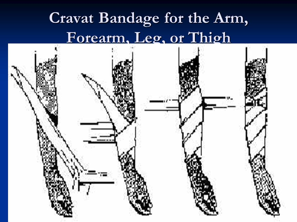Cravat Bandage for the Arm, Forearm, Leg, or Thigh