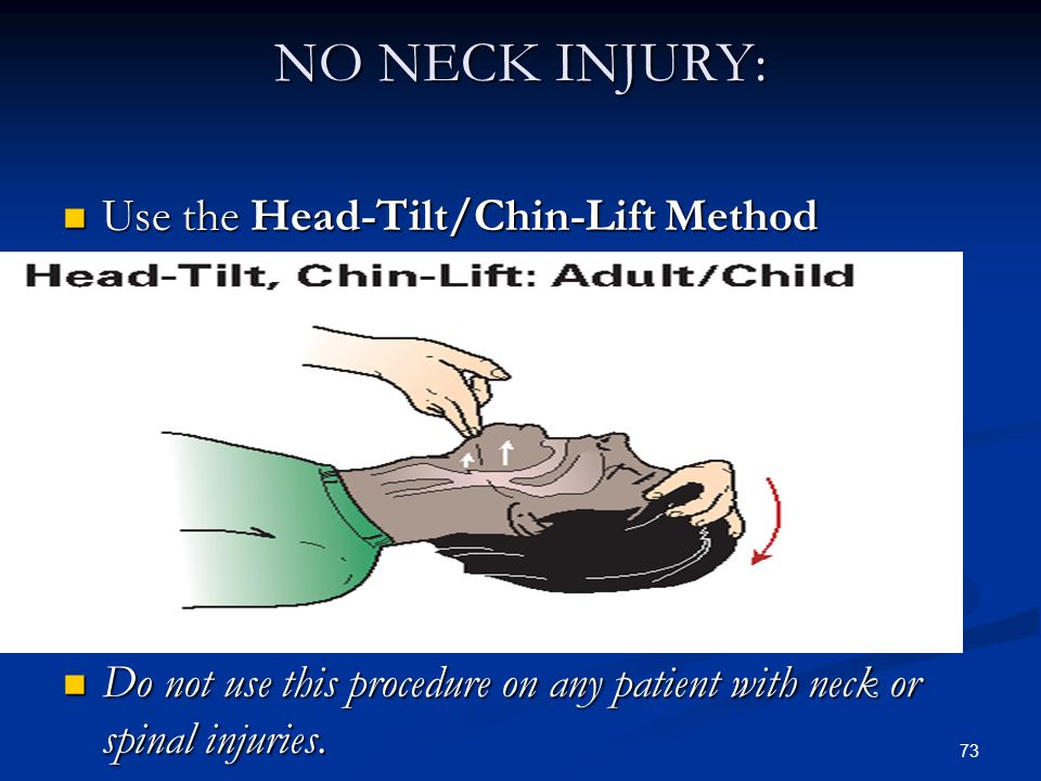 NO NECK INJURY: Use the Head-Tilt/Chin-Lift Method