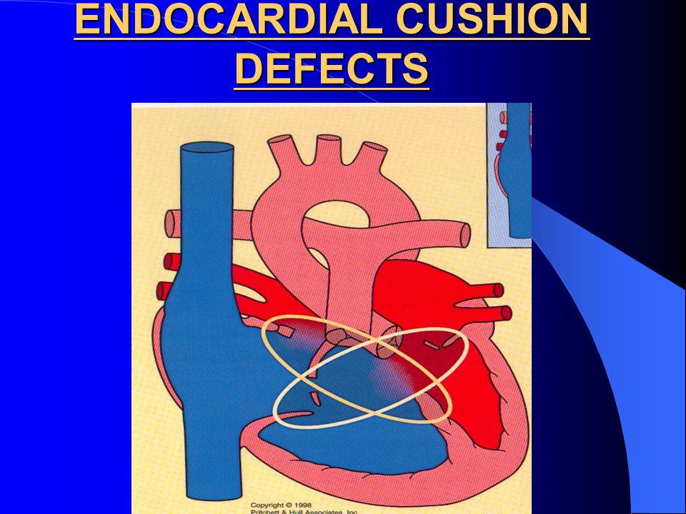 ENDOCARDIAL CUSHION DEFECTS