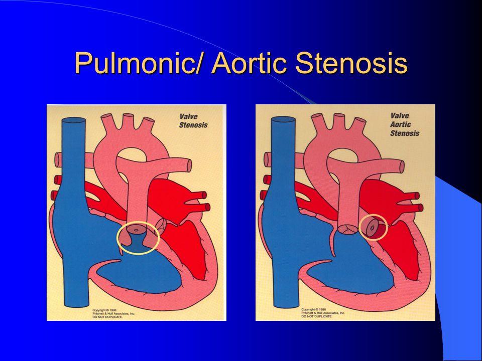 Pulmonic/ Aortic Stenosis