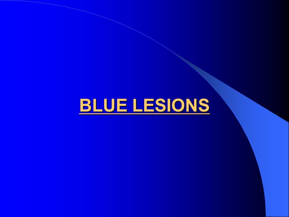 BLUE LESIONS