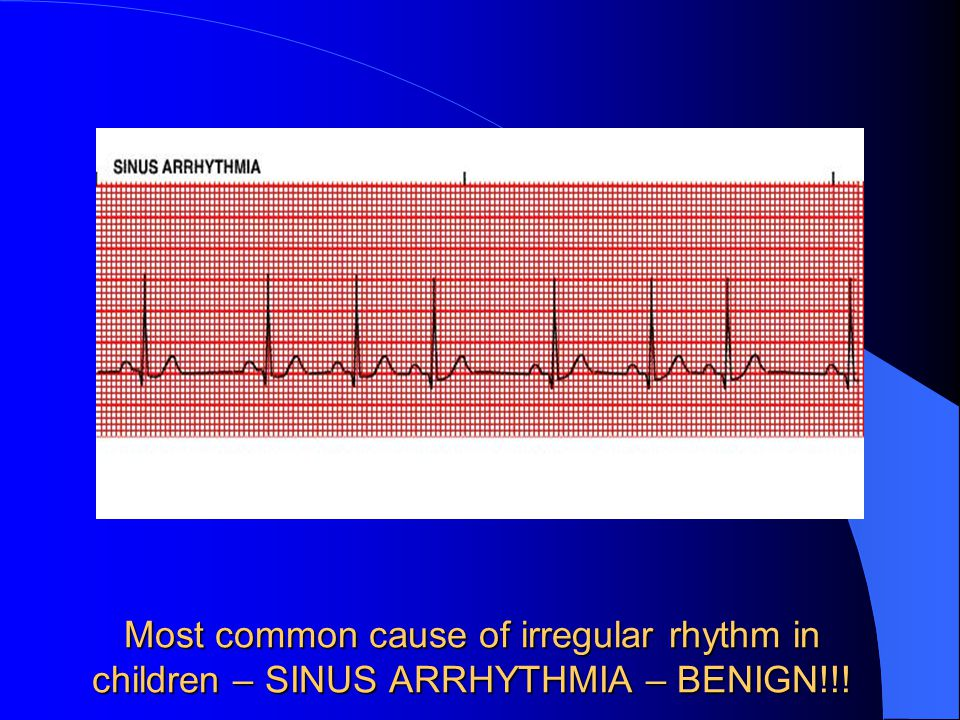 Most common cause of irregular rhythm in children – SINUS ARRHYTHMIA – BENIGN!!!
