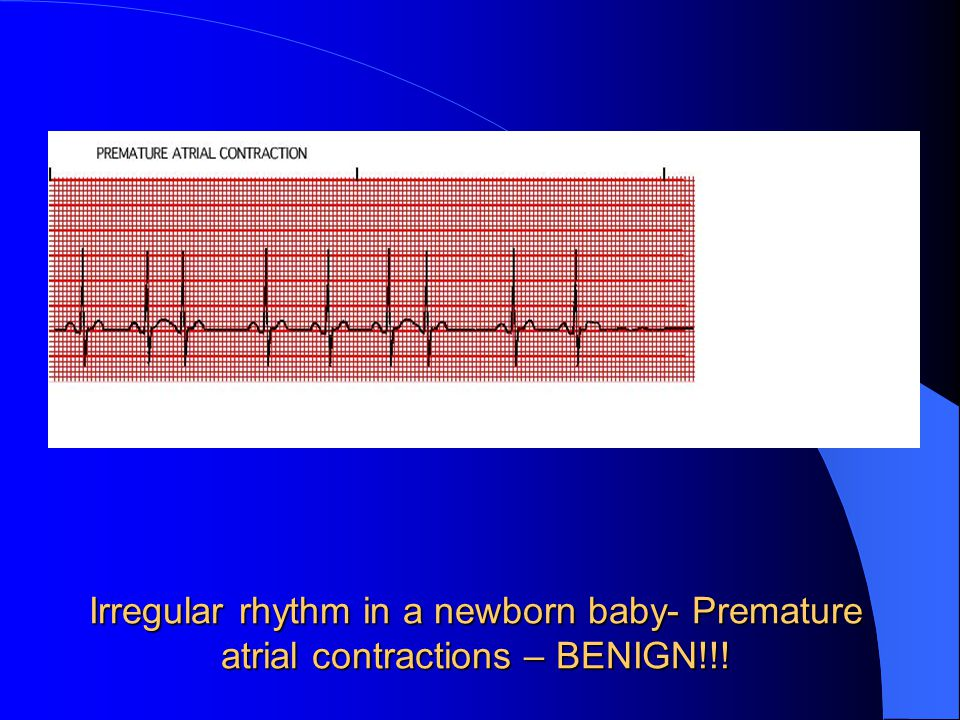 Irregular rhythm in a newborn baby- Premature atrial contractions – BENIGN!!!