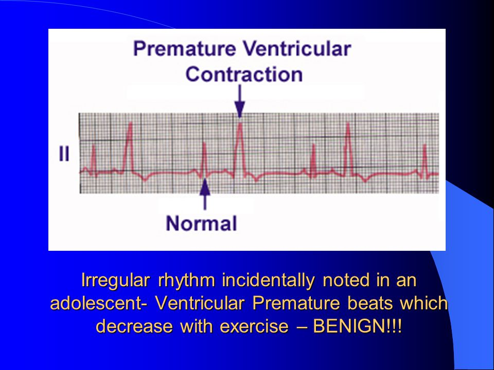 Irregular rhythm incidentally noted in an adolescent- Ventricular Premature beats which decrease with exercise – BENIGN!!!