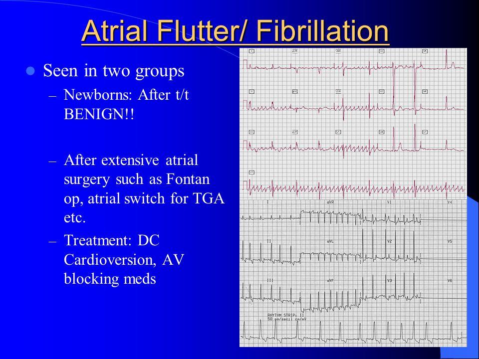 Atrial Flutter/ Fibrillation