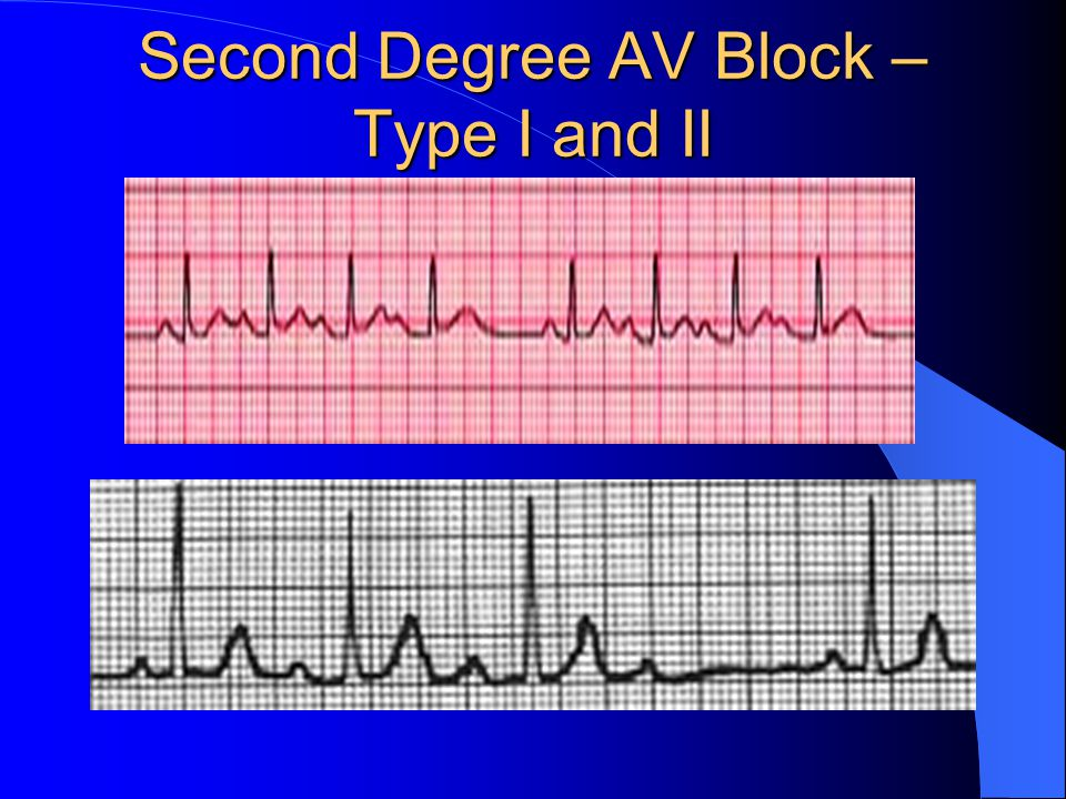 Second Degree AV Block –Type I and II
