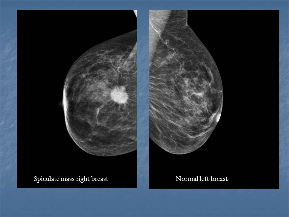 Spiculate mass right breast