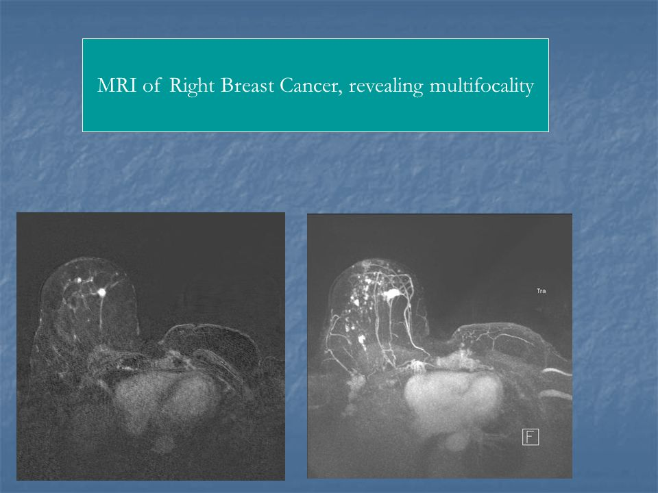 MRI of Right Breast Cancer, revealing multifocality