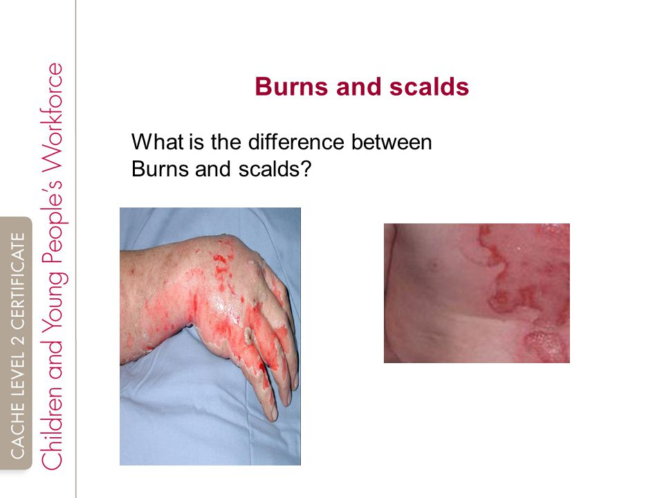 Burns and scalds What is the difference between Burns and scalds