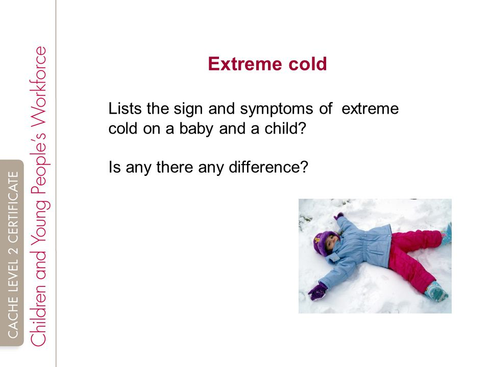 Extreme cold Lists the sign and symptoms of extreme cold on a baby and a child.