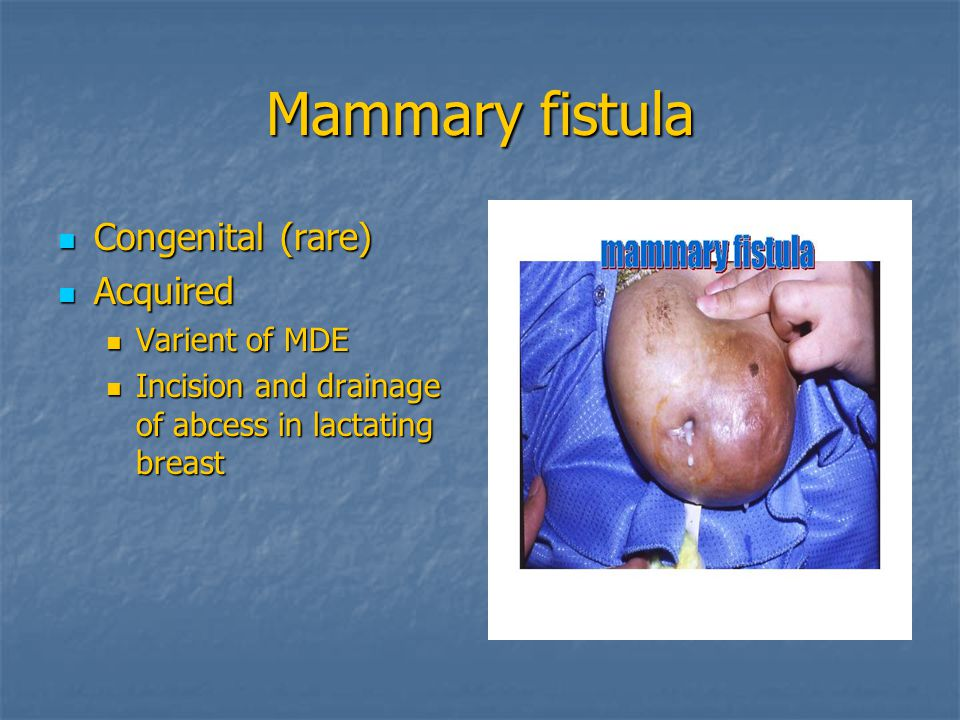Mammary fistula Congenital (rare) Acquired Varient of MDE