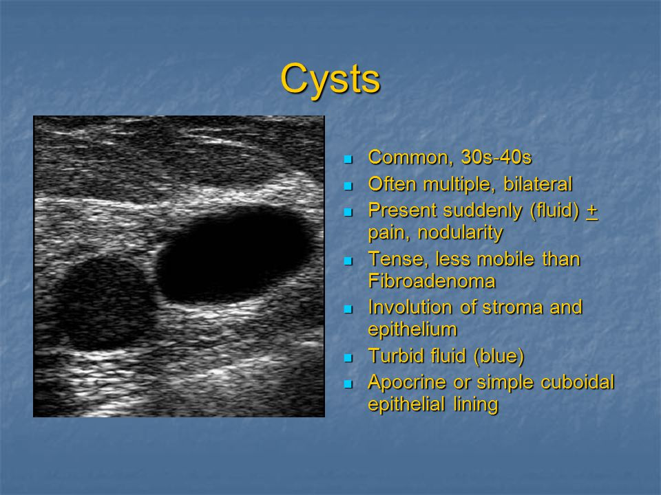 Cysts Common, 30s-40s Often multiple, bilateral