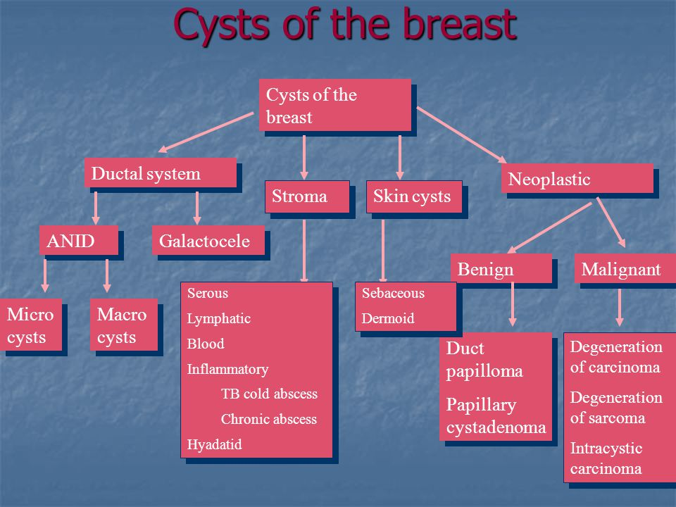 Cysts of the breast Cysts of the breast Ductal system Neoplastic