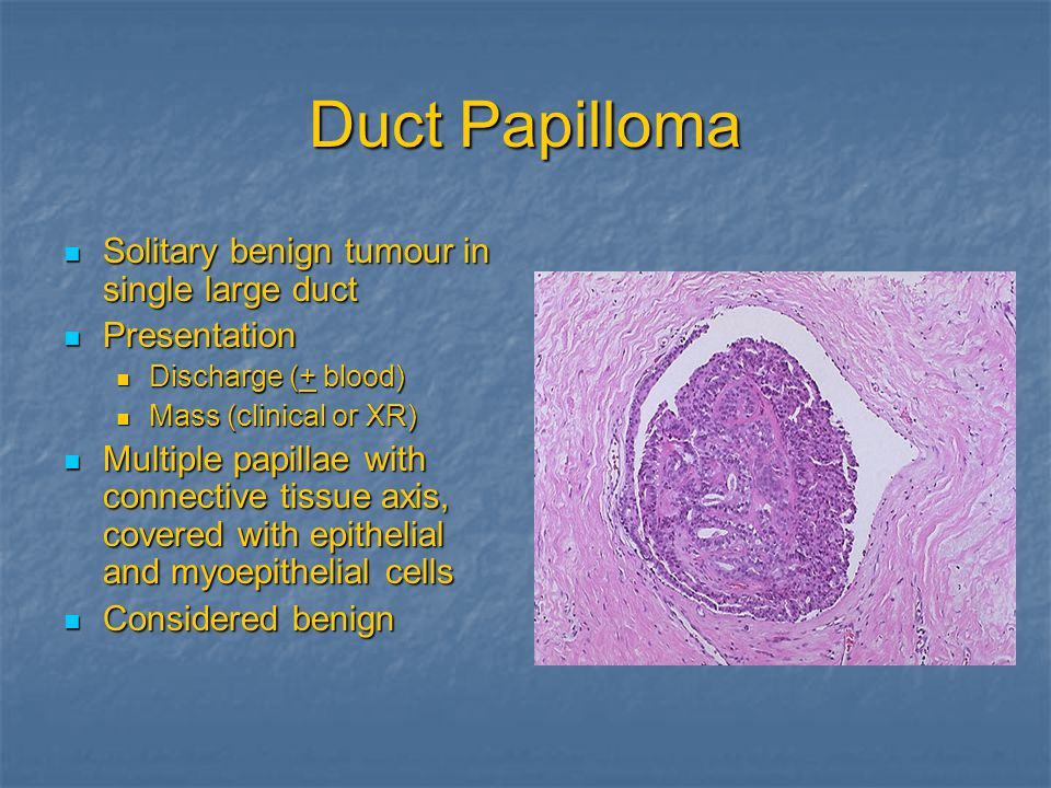 Duct Papilloma Solitary benign tumour in single large duct