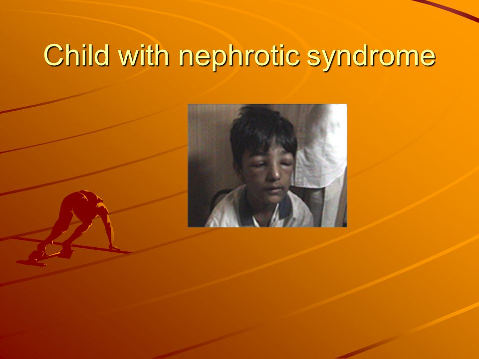 Child with nephrotic syndrome