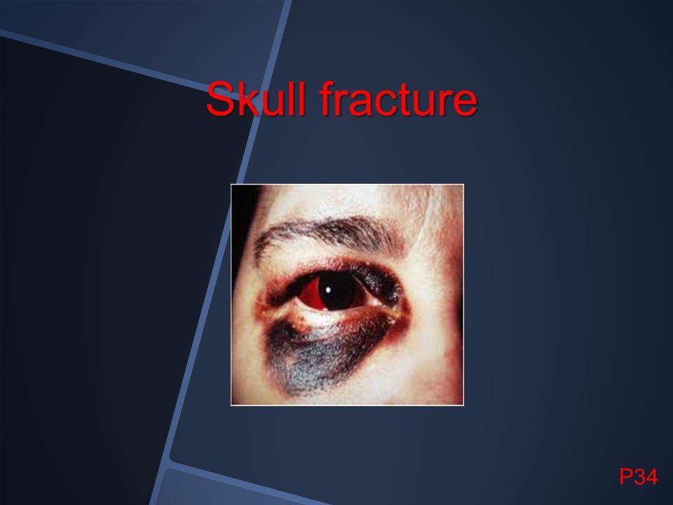 Skull fracture P34