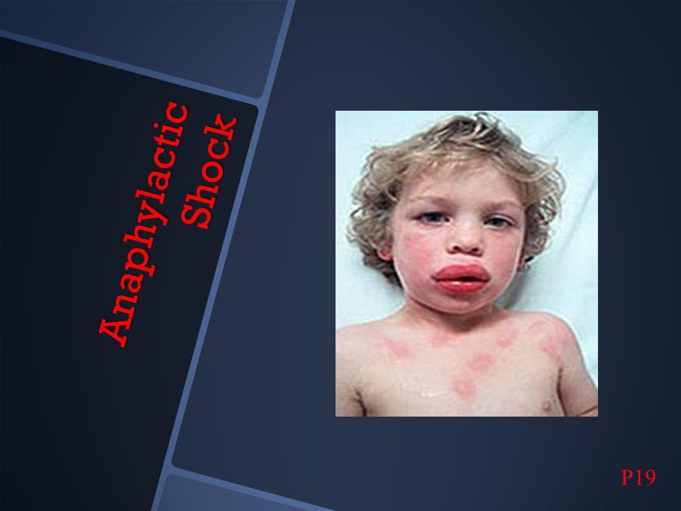 Anaphylactic Shock P19