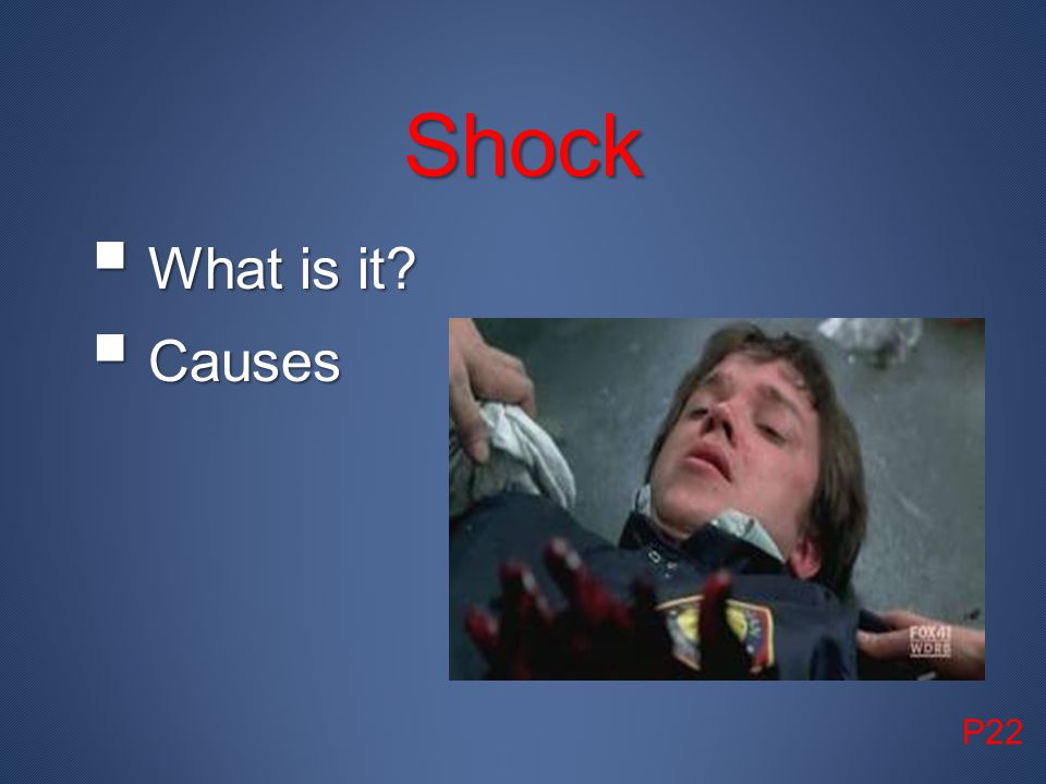 Shock What is it Causes P22
