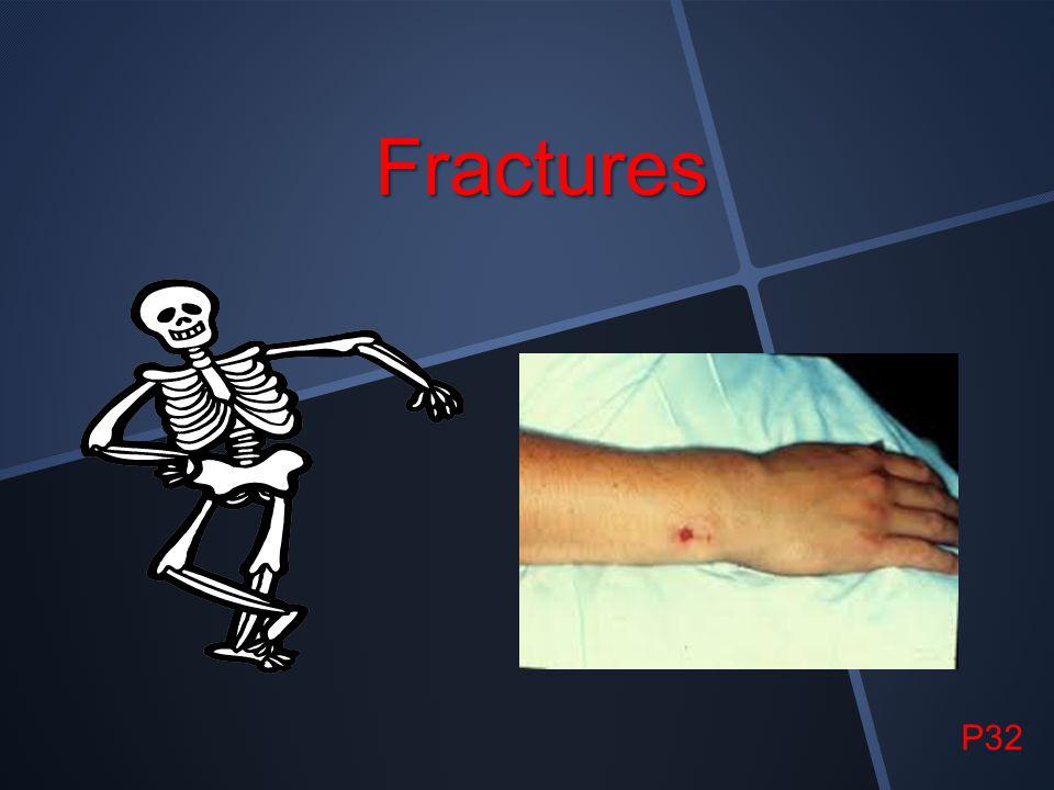 Fractures P32