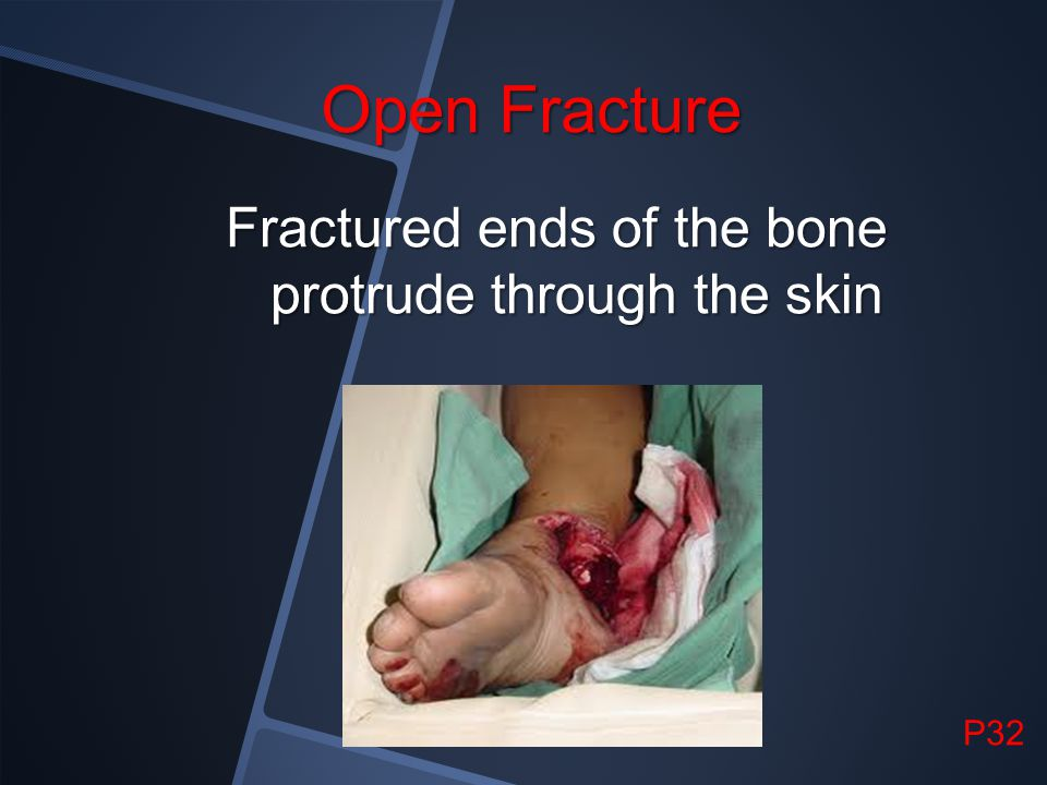 Fractured ends of the bone protrude through the skin