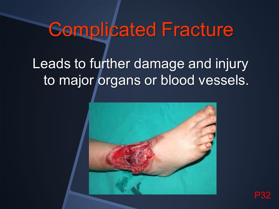 Complicated Fracture Leads to further damage and injury to major organs or blood vessels. P32