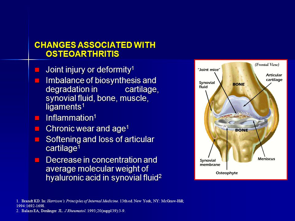 A Failure of the Supporting Structure of the Total Organ (Joint)
