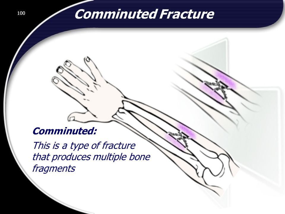 Comminuted Fracture Comminuted: This is a type of fracture