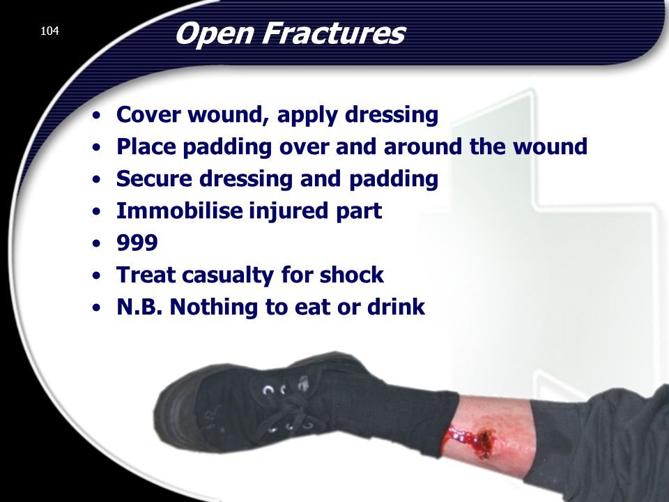 Open Fractures Cover wound, apply dressing