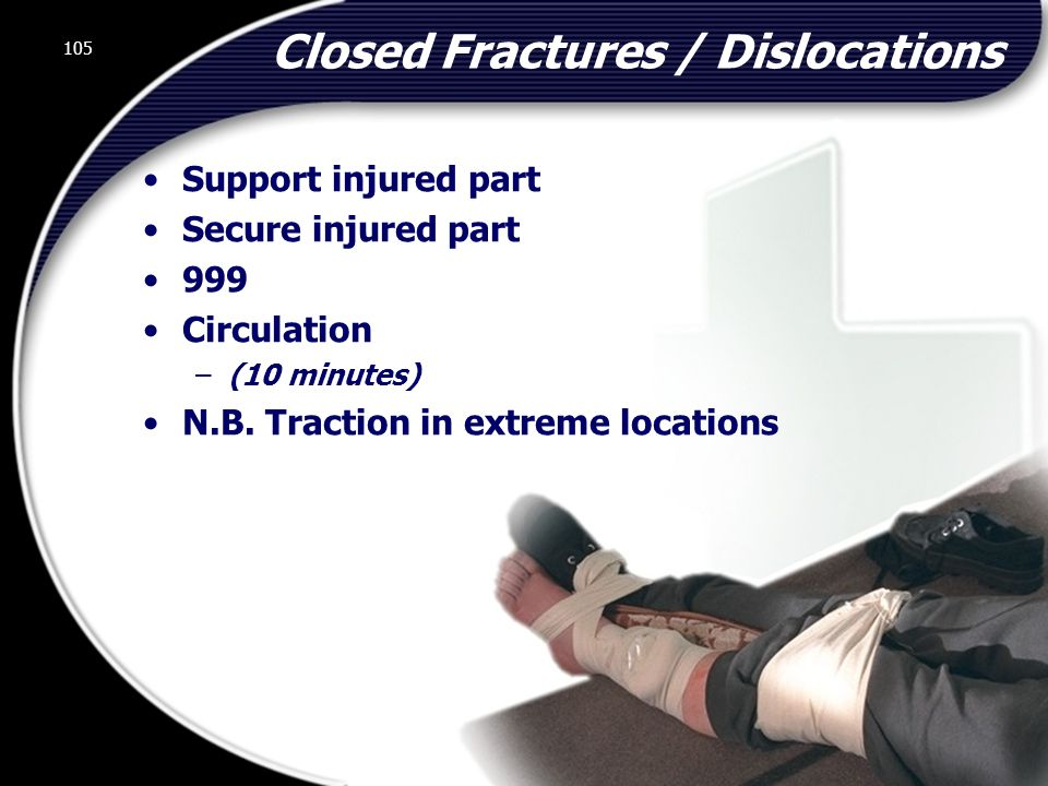 Closed Fractures / Dislocations