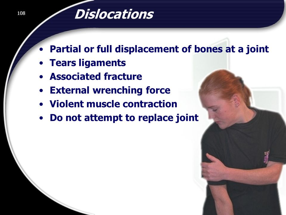 Dislocations Partial or full displacement of bones at a joint