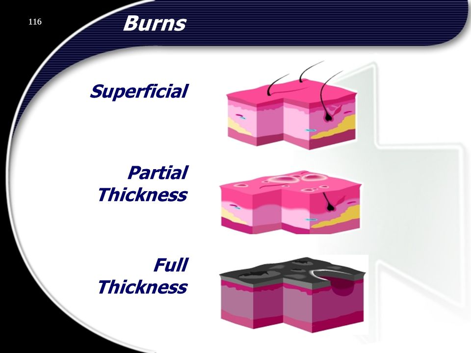 Burns Superficial Partial Thickness Full Thickness 116