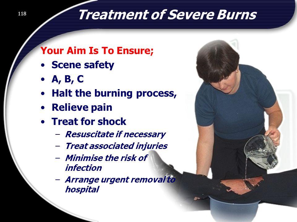 Treatment of Severe Burns