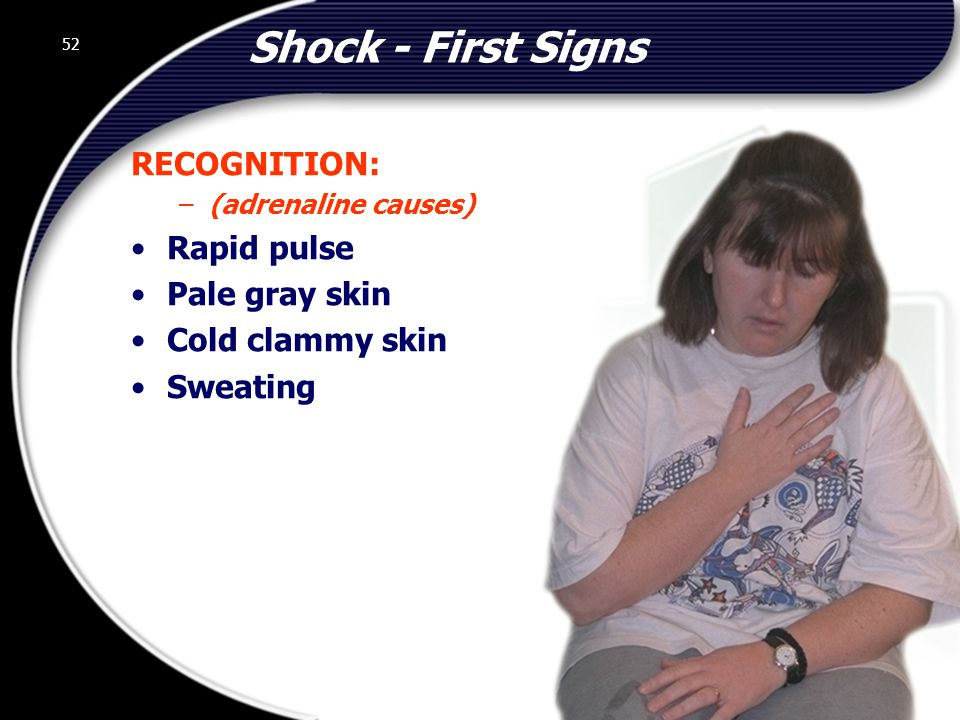 Shock - First Signs RECOGNITION: Rapid pulse Pale gray skin