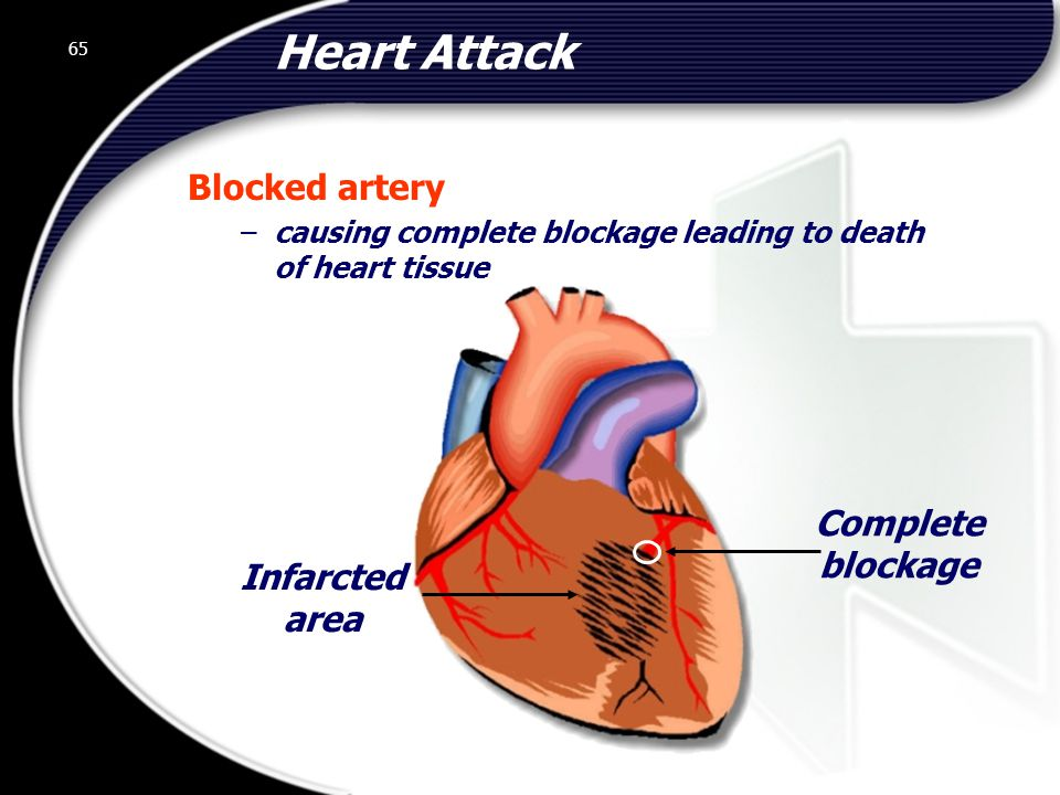 Heart Attack Blocked artery Complete blockage Infarcted area