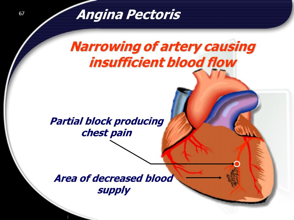 Narrowing of artery causing insufficient blood flow