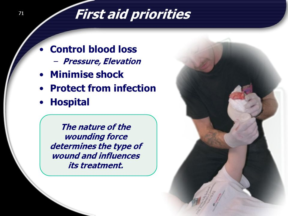 First aid priorities Control blood loss Minimise shock